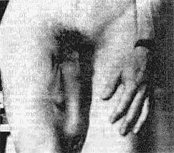 Гэри Гриффин. Как увеличить размеры мужского полового члена