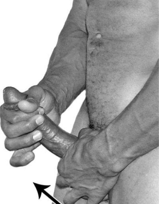 Джелкинг метод доения члена