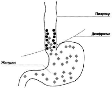 Схема развития заболевания