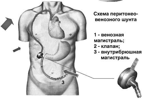 Схема и рентгенограмма
