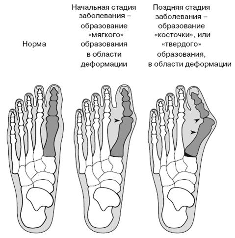 Косточка на ноге с внутренней стороны стопы  причины и