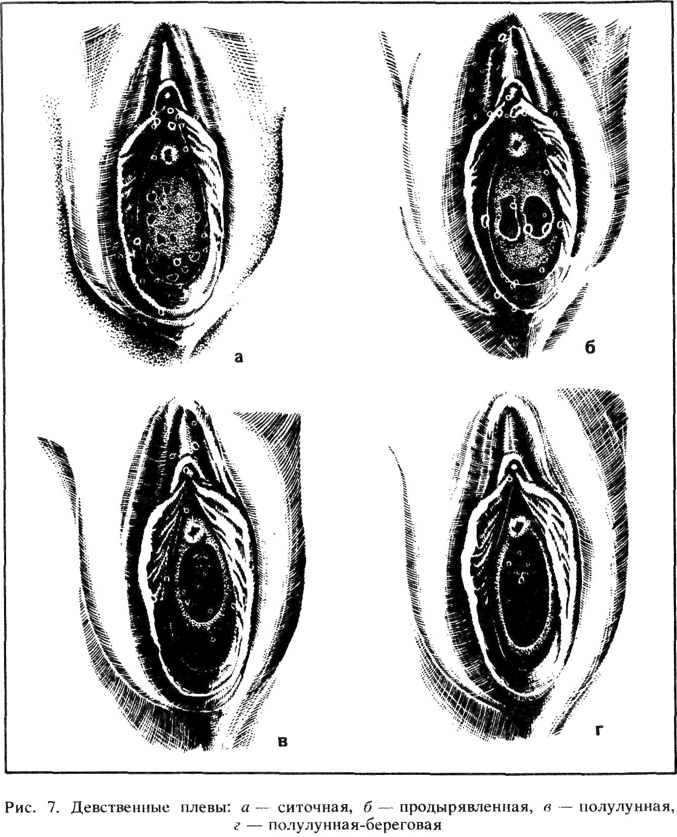 Форма вагин у женщин 14 фотография