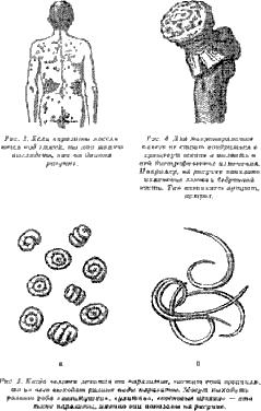 паразиты внутри организма
