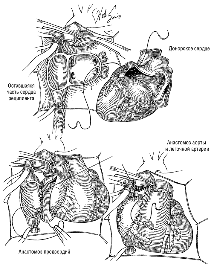Сканирование Таллиевое