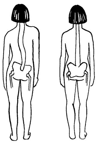 Лордоз позвоночника симптомы и лечение
