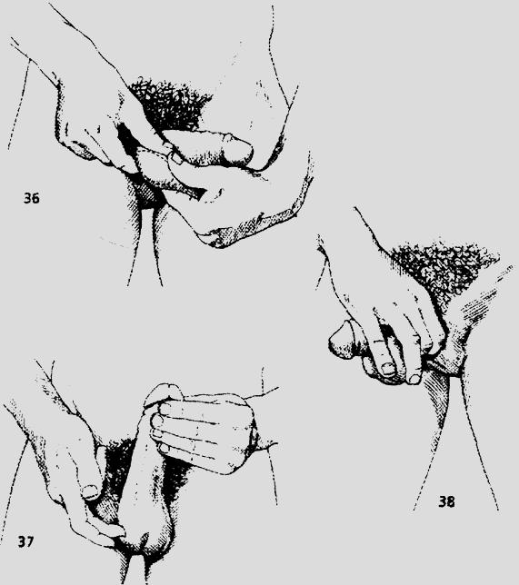 Анатомия плеча  Плечевой сустав  Спортивная медицина