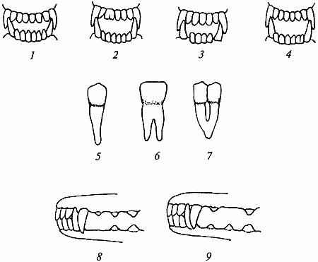второй зуб слева сдвоенный