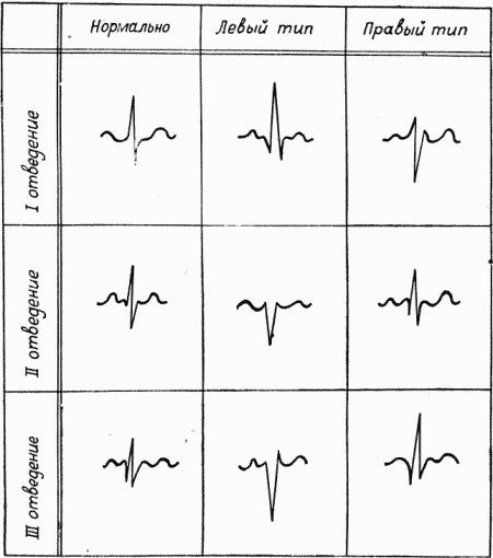 Рис. 6. Схема электрокардиограммы при левом и правом преобладании.