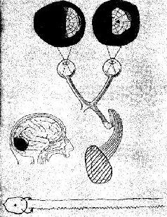 Карта зрительного поля, анатомическая схема зрительной системы 20-летней девушки с разрушением в правой затылочной...