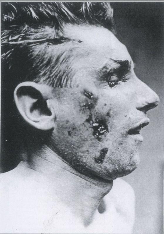 фото рубленые раны