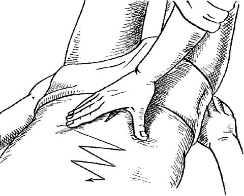Классический массаж, применяемый при плеврите, пневмонии, остром бронхите, эмфиземе легких.