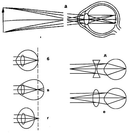 Ход лучей от объекта и построение изображения на сетчатке глаза ( а ). Схема рефракции в нормальном ( б ), близоруком...