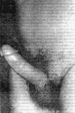 Увеличение члена без операции способы увеличить пенис