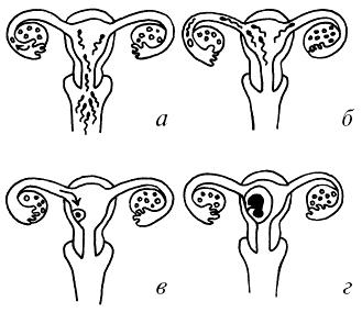 Струйный женский организм фото 122-415