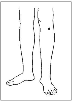 Лимфаденит подмышечный у женщин мастопатия при климаксе зож газета