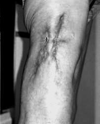 Медикаментозное лечение псориаза